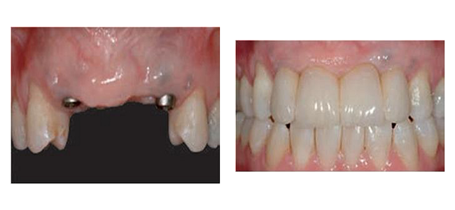 Implants in position and final restoration